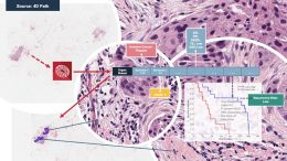 4D Q-plasia OncoReader Breast sample workflow and output.